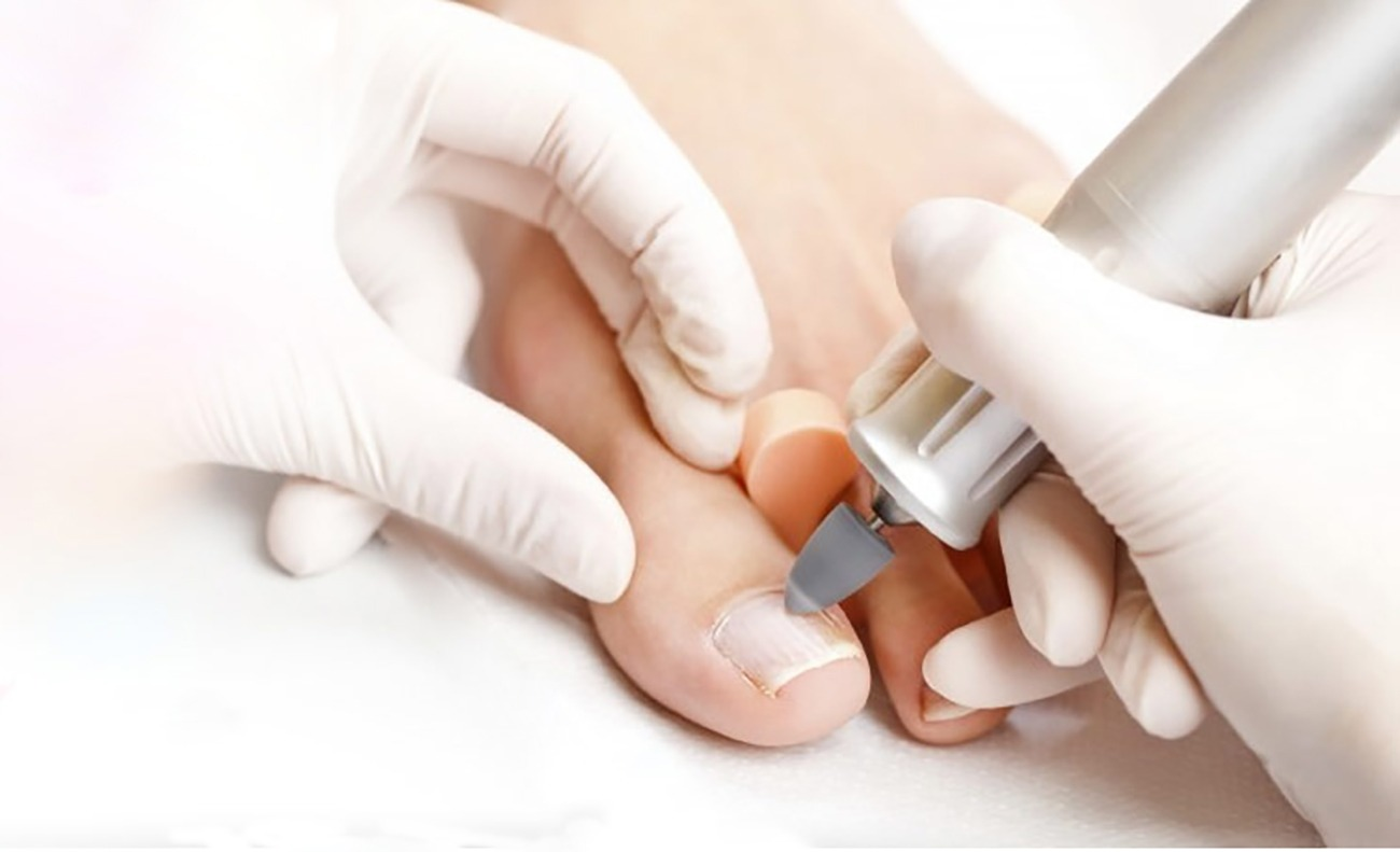 Stanford pedicure medical filing